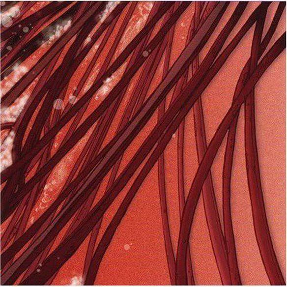 Recloose - Cardiology